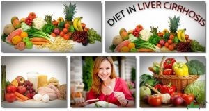 بیماری سیروز کبدی یا تنبلی کبد:علائم،درمان و رژیم غذایی