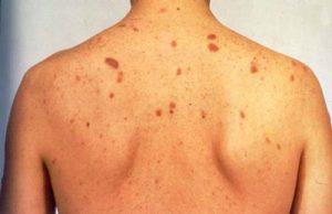 بیماری هپاتیت و انواع آن: علائم، راههای انتقال و درمان