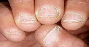 بیماری هپاتیت ب B: علایم، درمان، راههای انتقال و عوارض